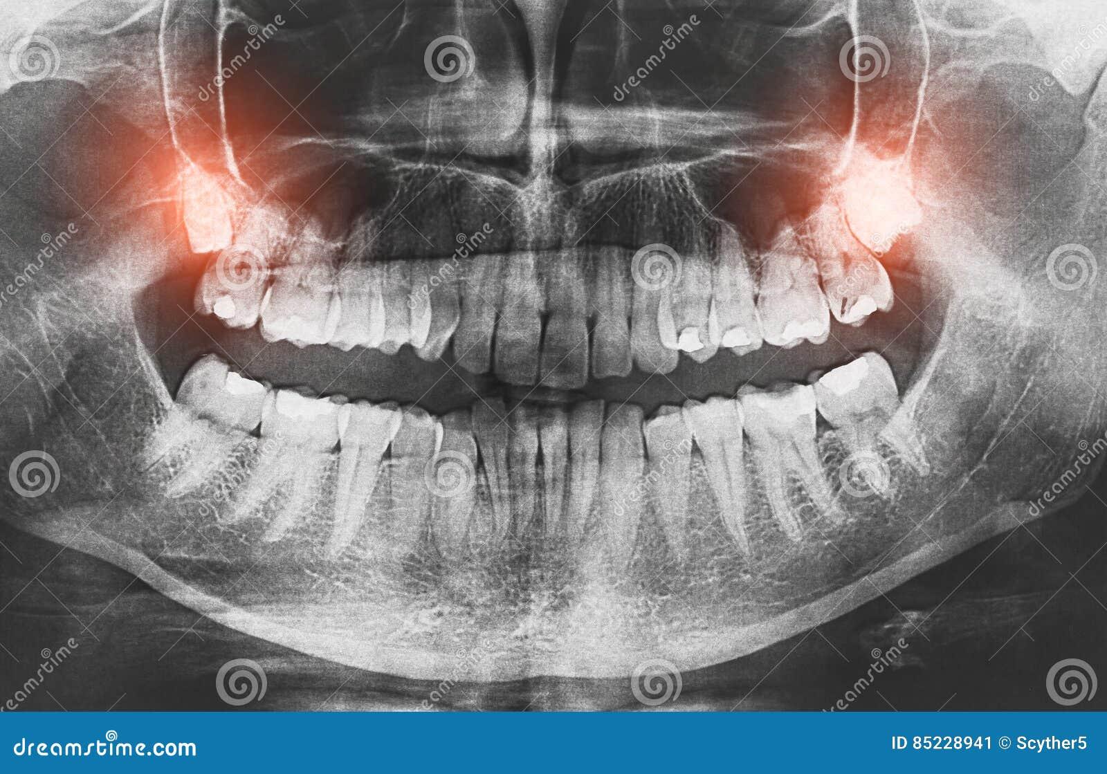 X-射线图象生长智齿特写镜头使概念痛苦