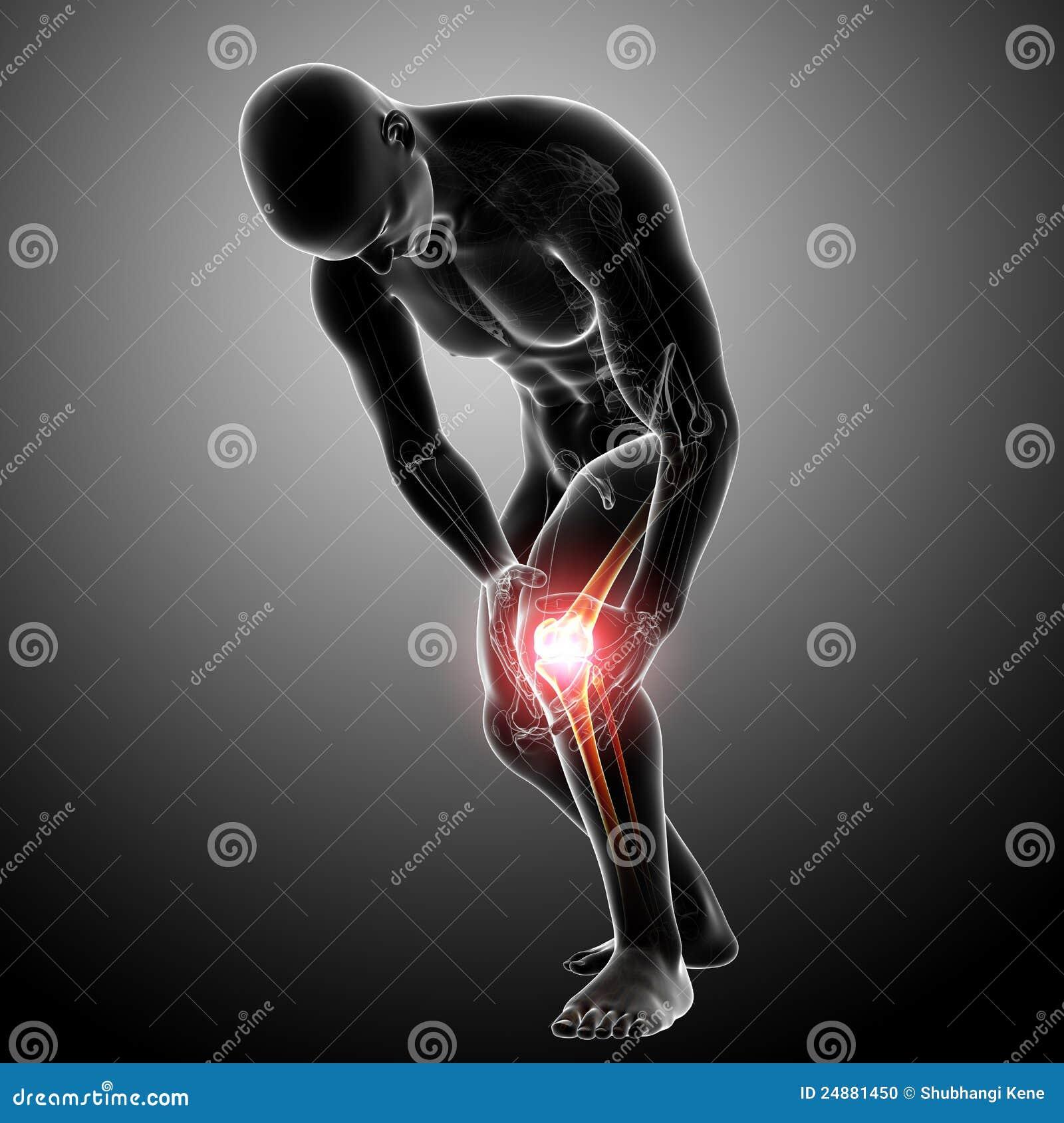 X-ray Anatomy Of Knee Pain Gray Stock Illustration - Illustration of ...