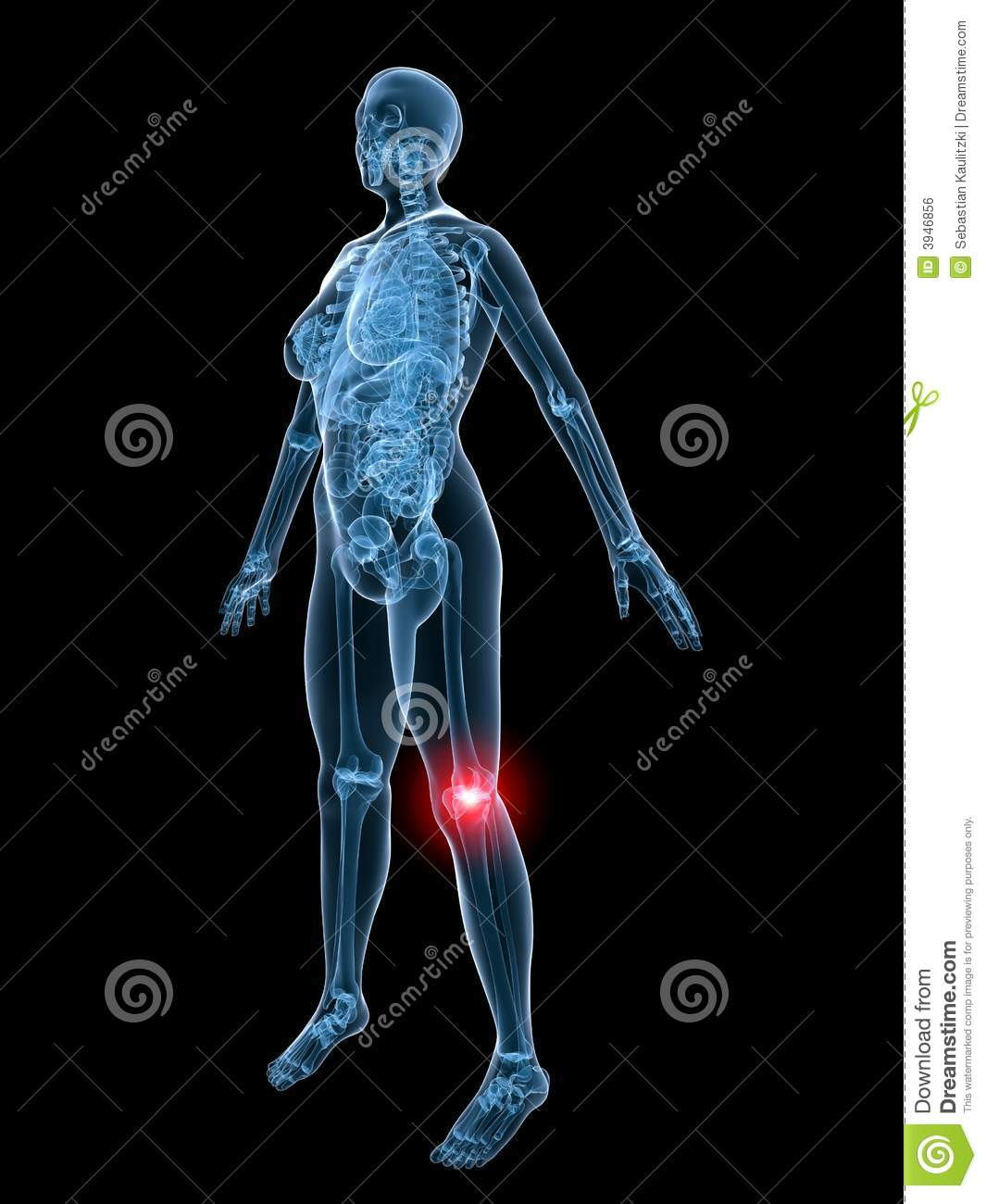 X-ray anatomy-painful knee stock illustration. Illustration of human ...