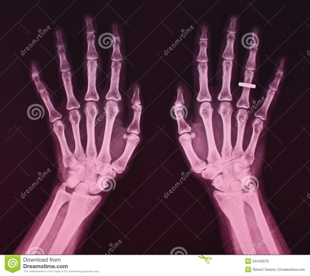 X Ray Of Both Hands, Female Stock Image - Image of ring, radiation ...