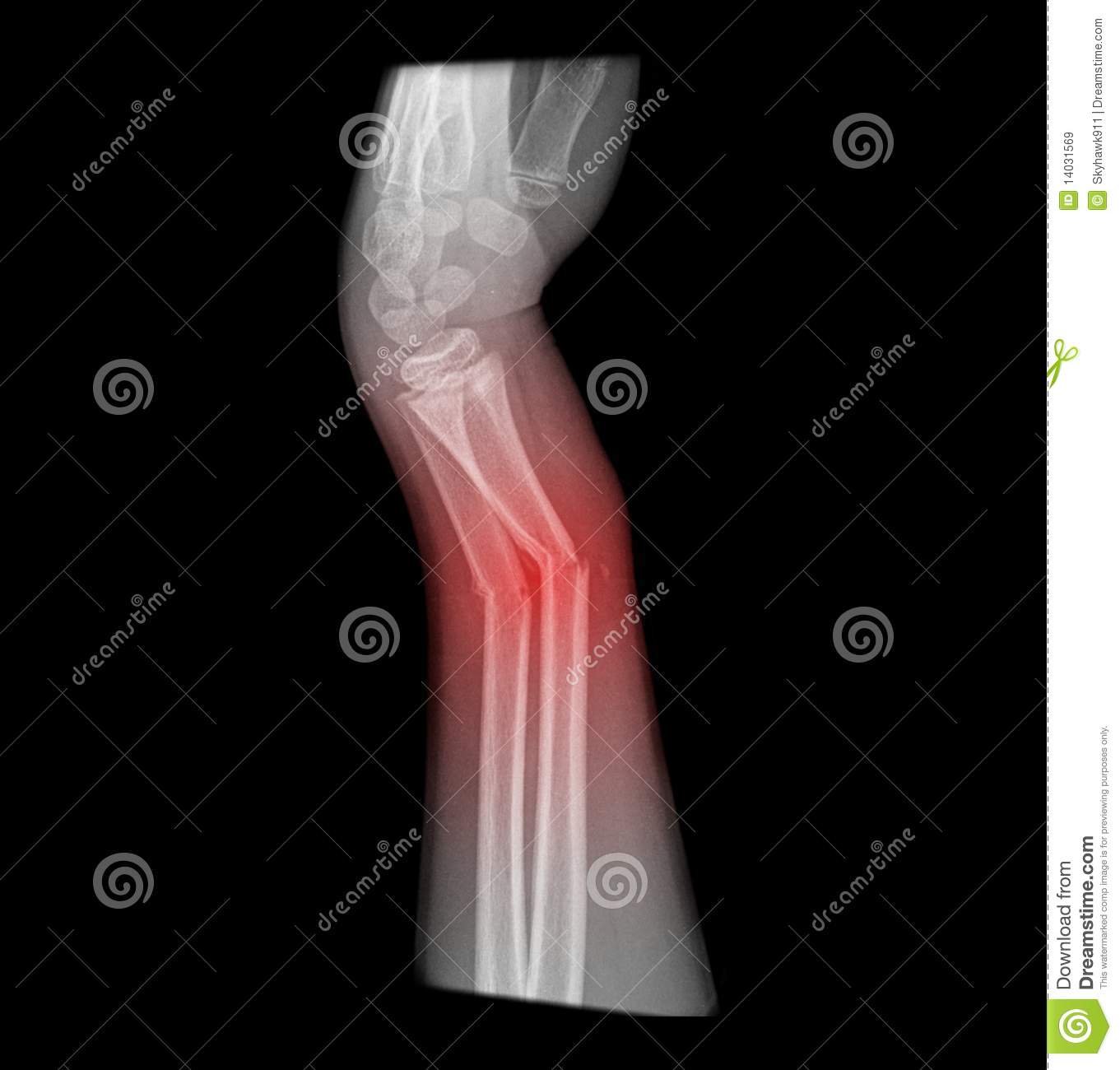 Broken arm, complete distal fracture of radius and ulna on x-ray.