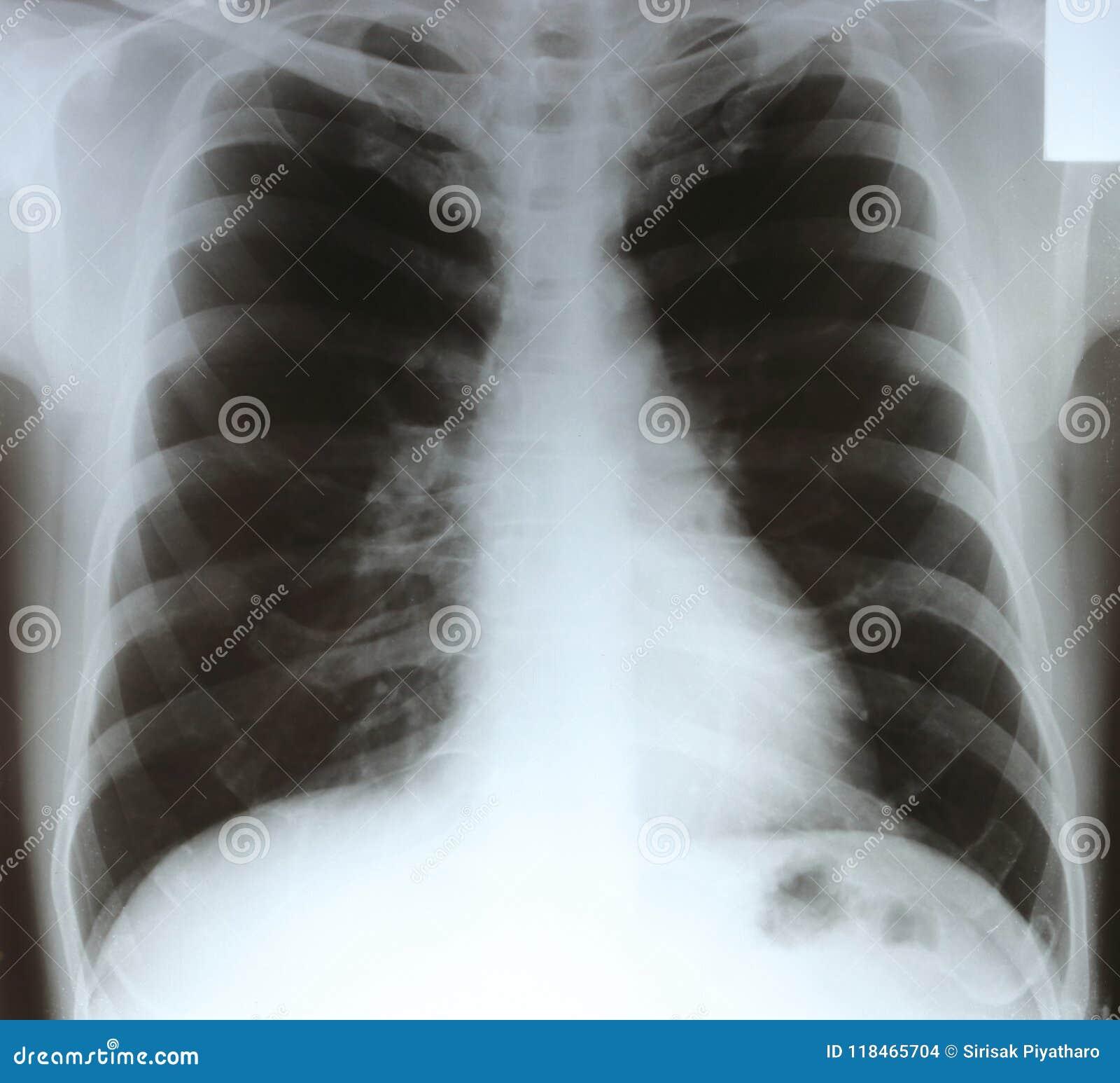 X-ray chest film