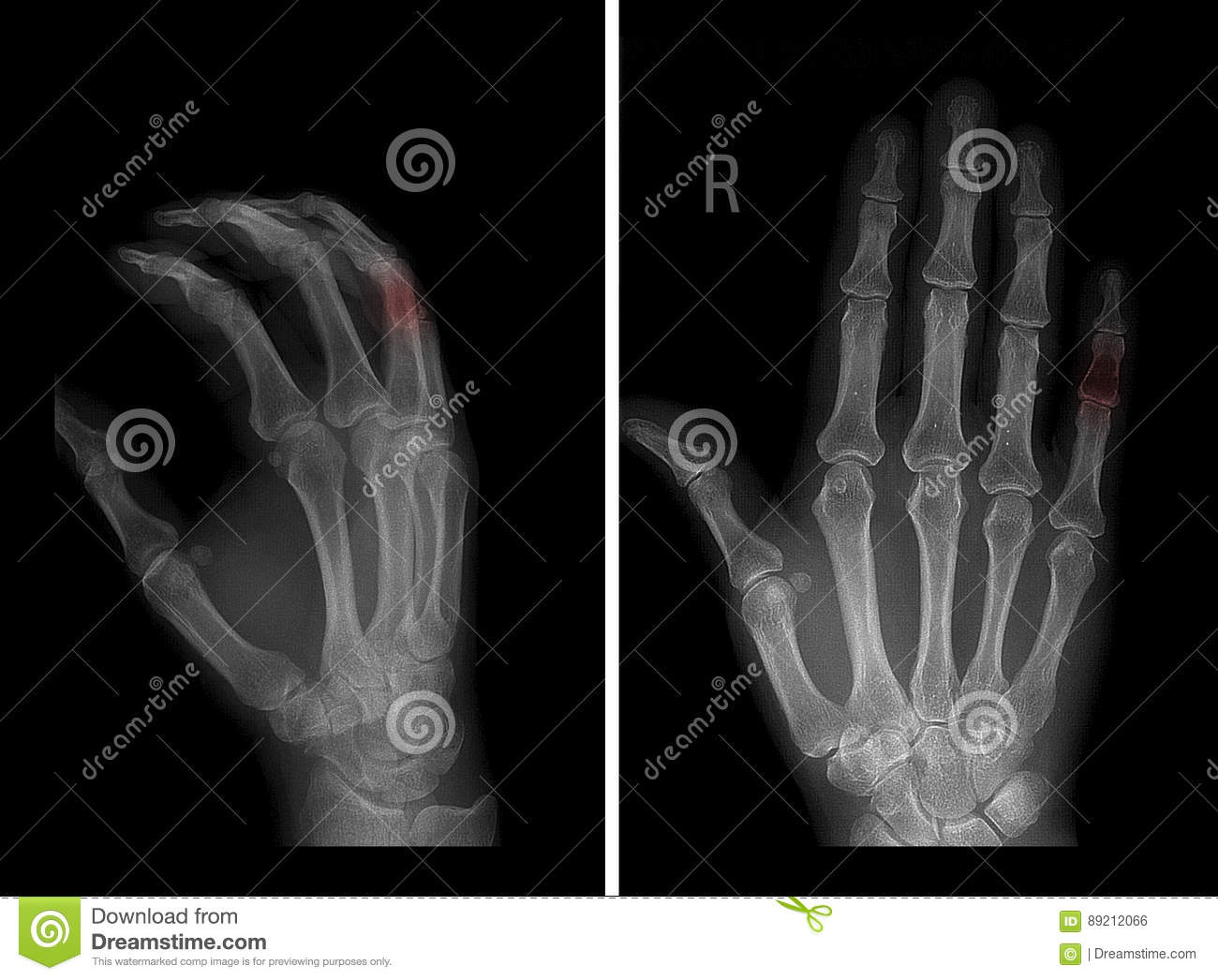 X-ray of the chondroma of the middle phalanx of the 5th finger of the left hand. Pathology in red marker