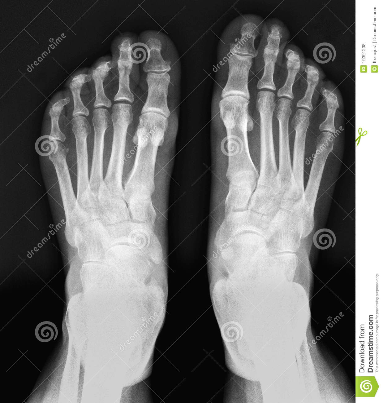 ray Feet. Royalty Free Stock Photos - Image: 19391238