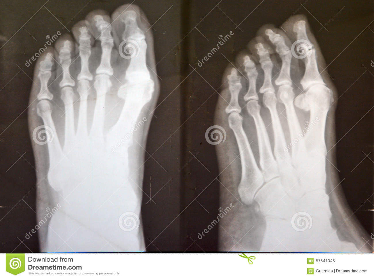 X ray of female feet stock photo. Image of joint, inside - 57641346