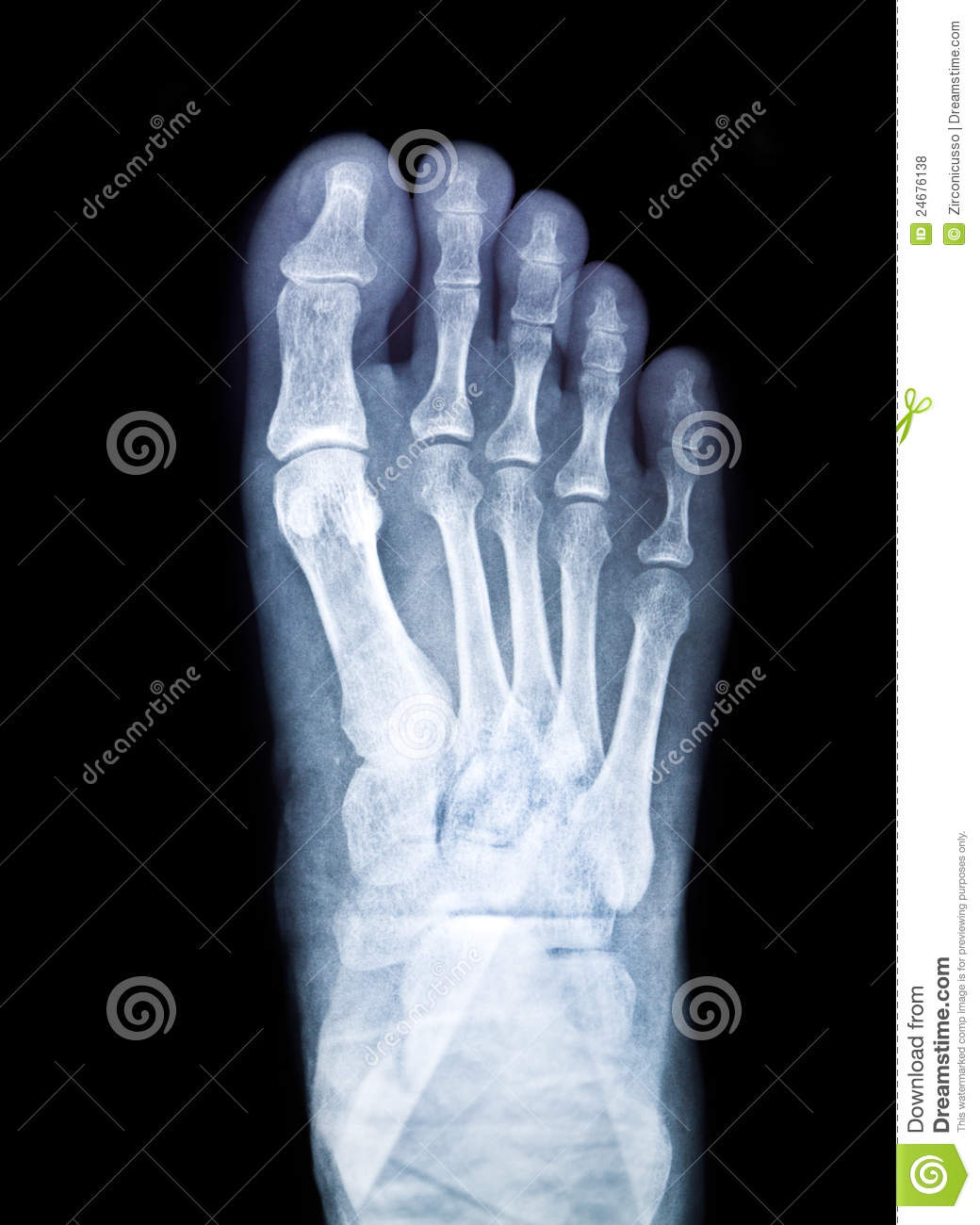 x ray film royalty free stock photos image 24676138 state clip art state clip art free