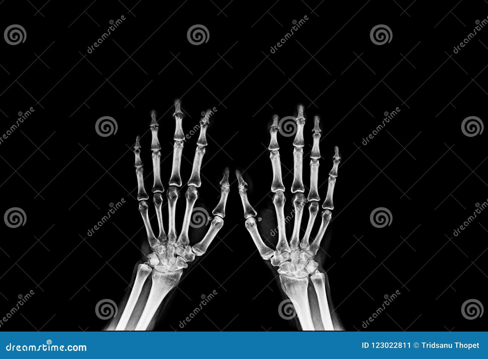 Hand X-ray On Black Background Stock Image - Image of image, anatomy ...