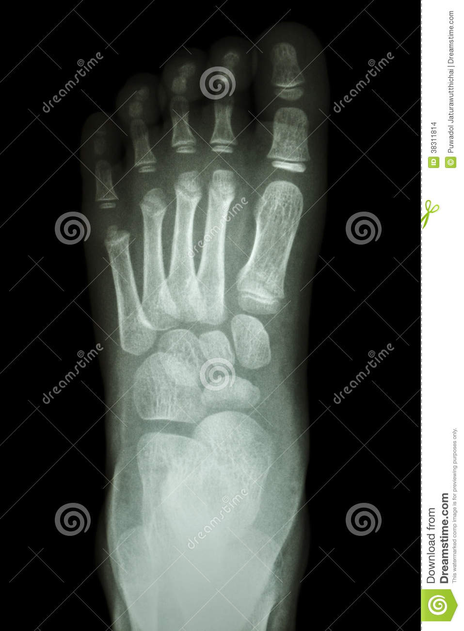 ray Foot AP   Sh...Xray Of Childs Foot