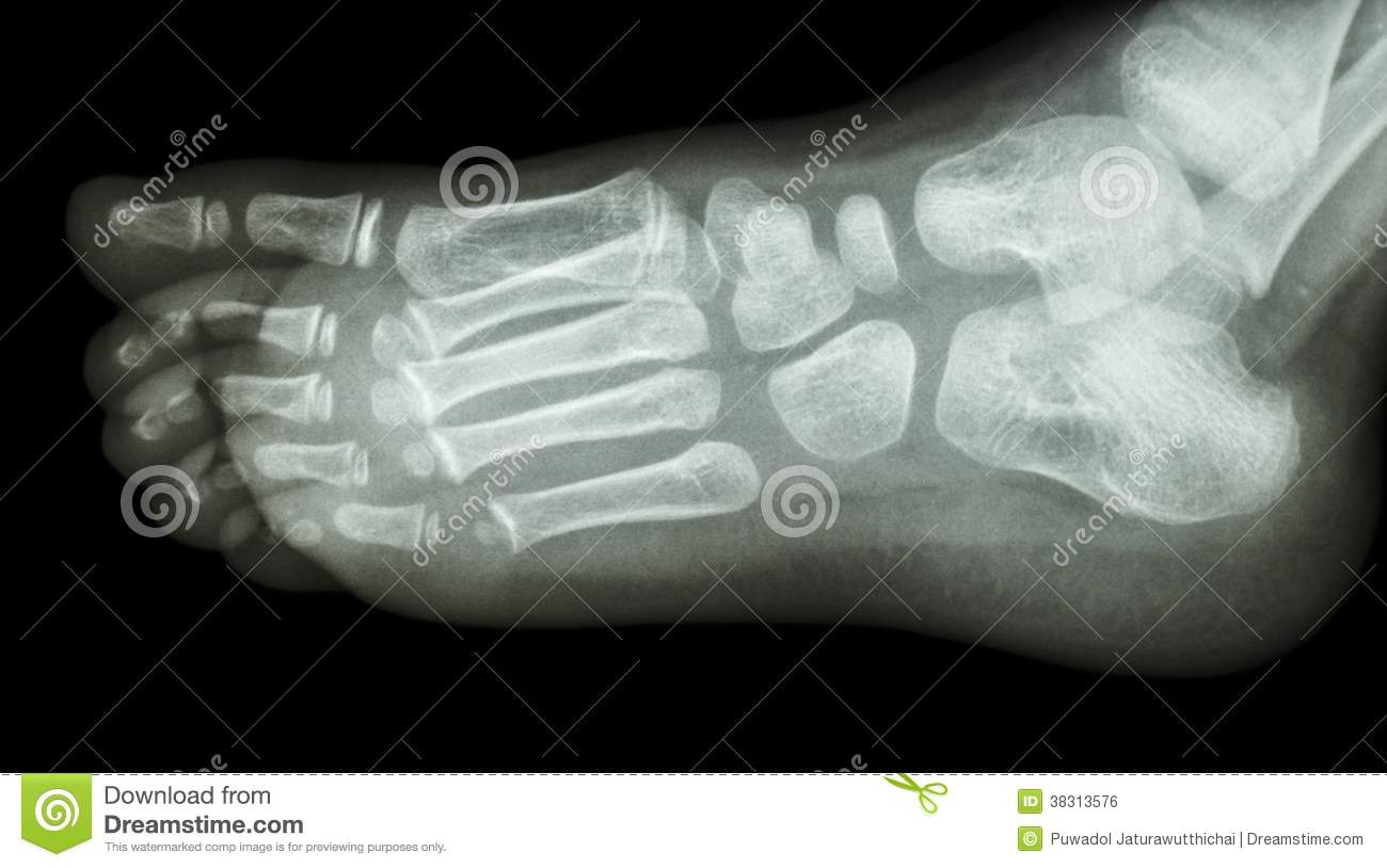 ray Foot Lateral...Xray Of Childs Foot