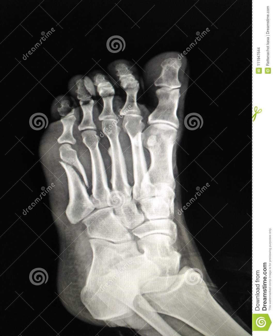 X Ray Foot Stock Photo Image Of Human Anatomy Medicine 111947644