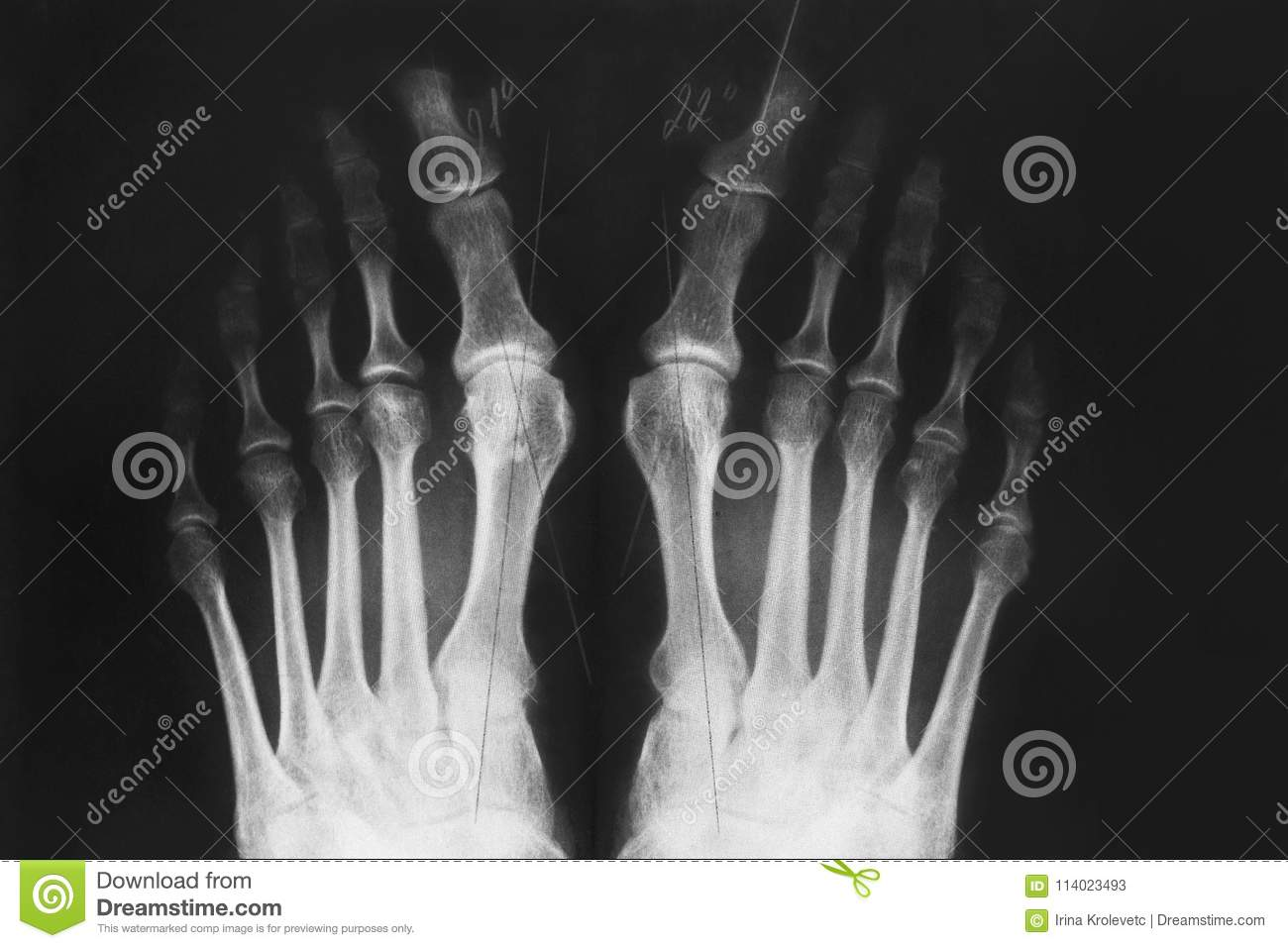 X Ray Of The Foot Valgus Deformity Of The Toe Stock Image Image