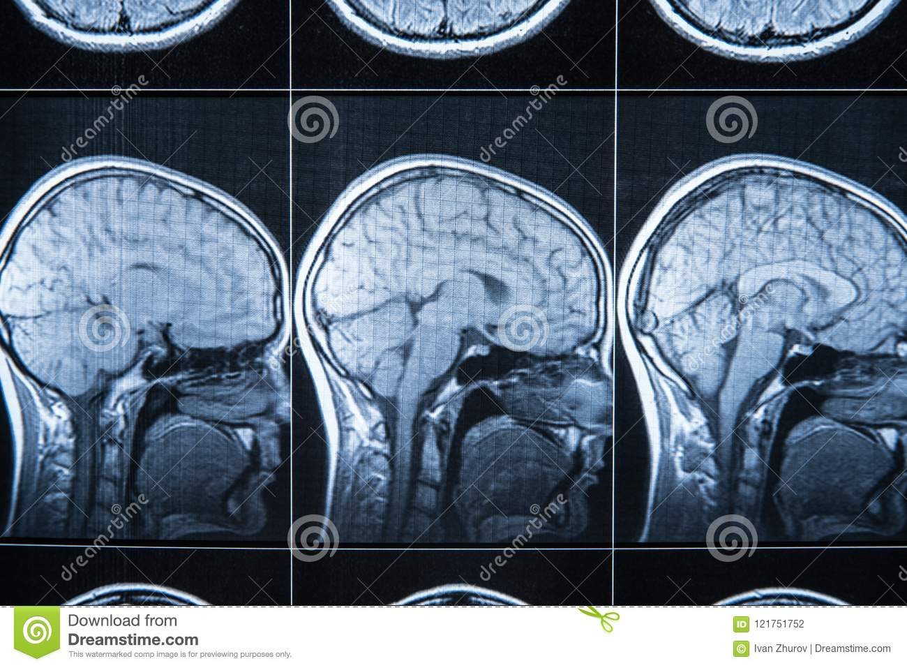 X-ray of the head and brain, MRI