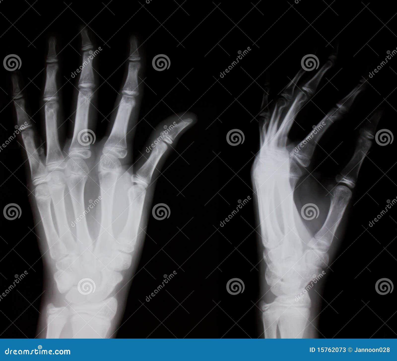 xray of human hand royaltyfree stock image