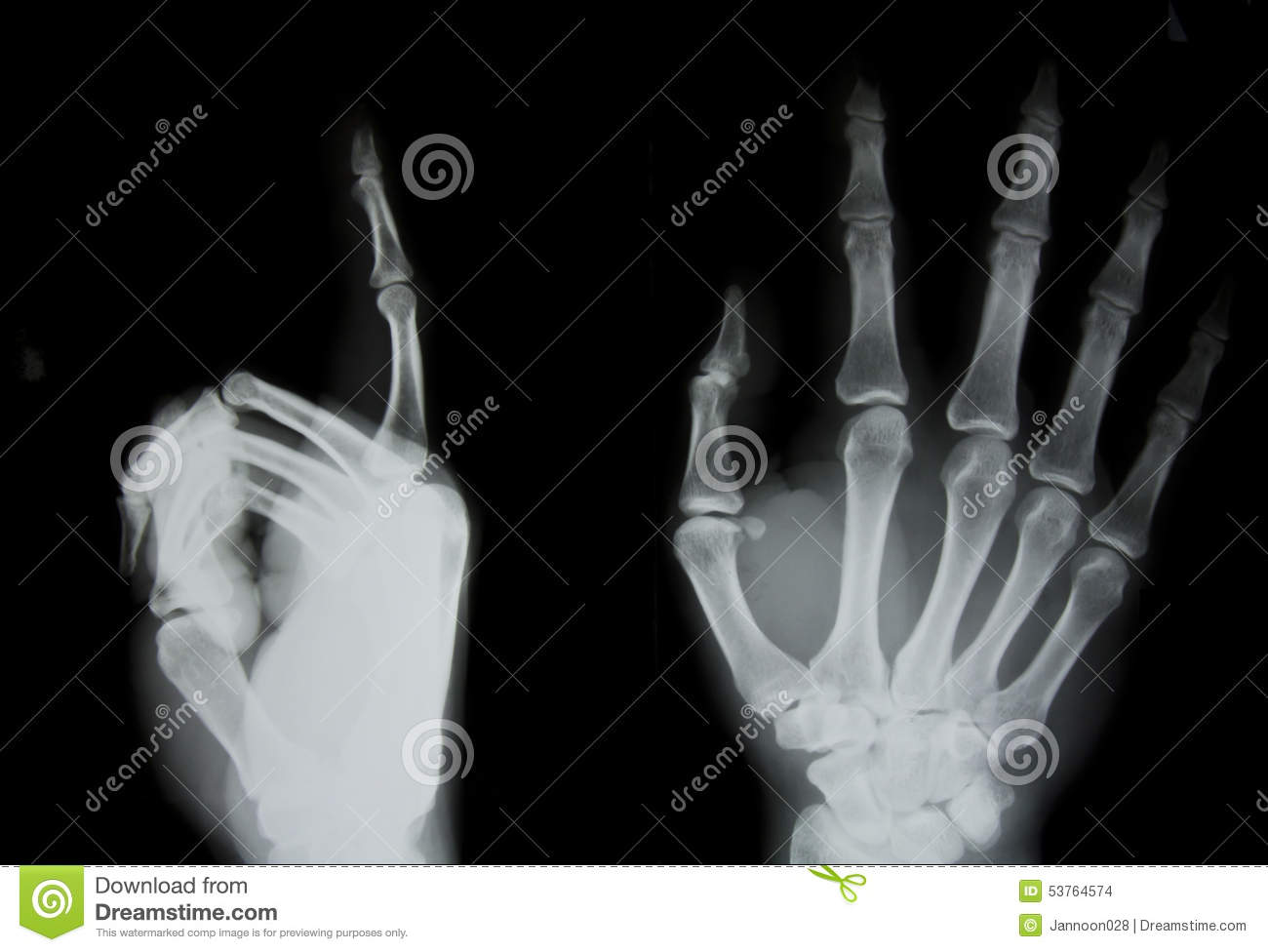 X Ray Of Human Hand Stock Photo Image Of Picture Anatomy 53764574