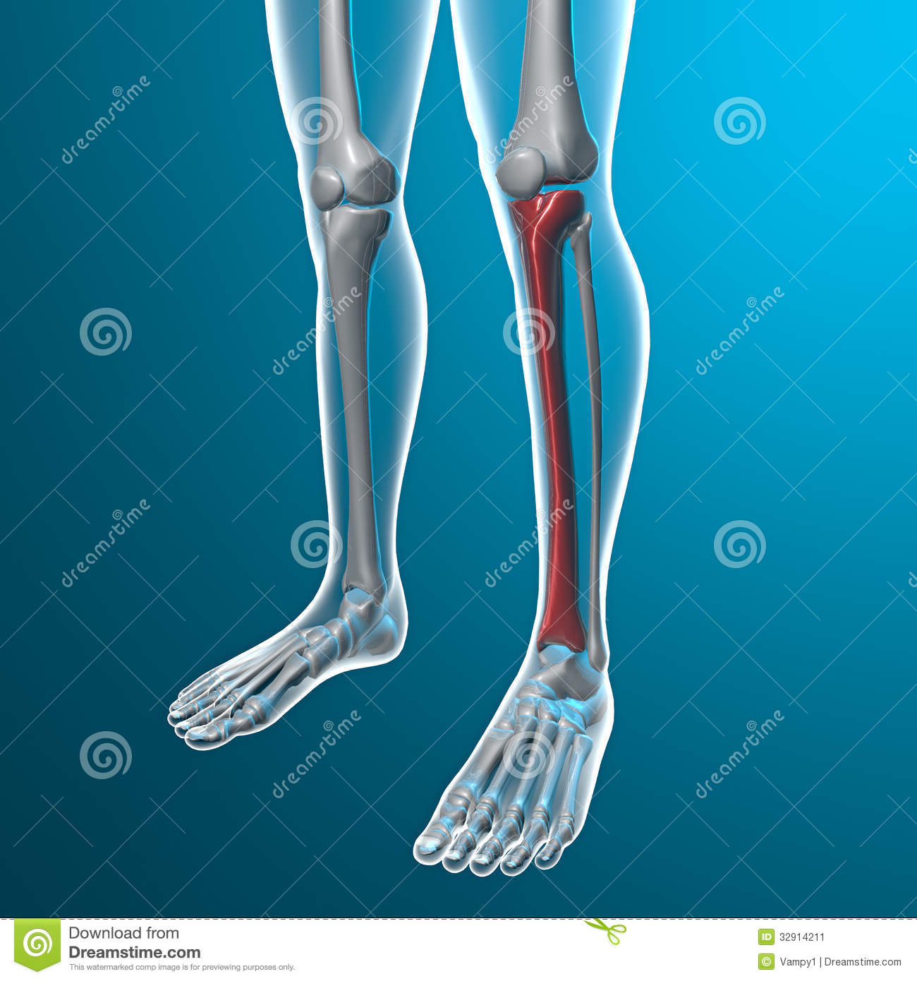 X Ray Of Human Legs Tibia Bone Stock Illustration Illustration Of