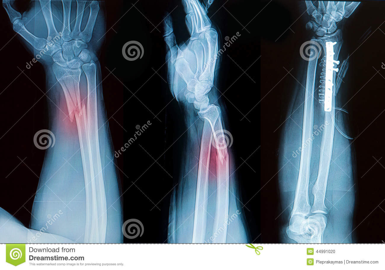 X Ray Image Of Broken Forearm Bone Stock Photo Image Of Fracture