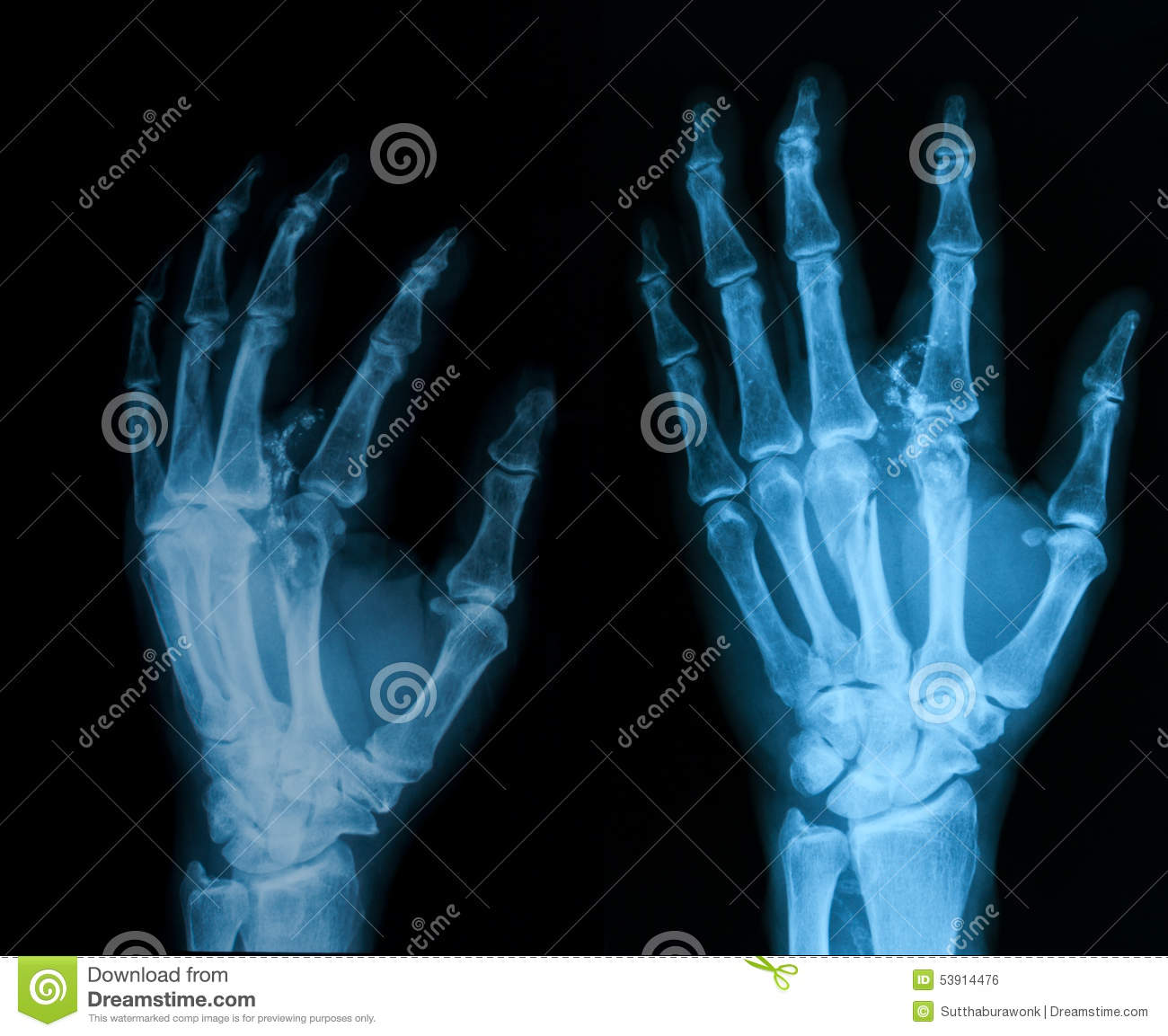 Metacarpal Stock Photos - Royalty Free Stock Images