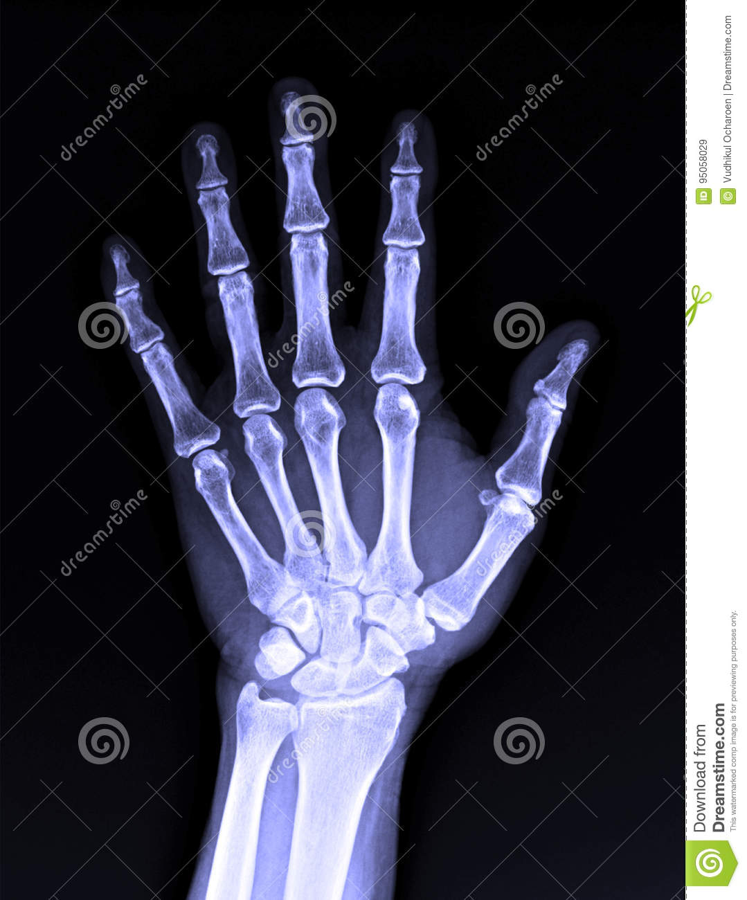X-Ray image of male human hand