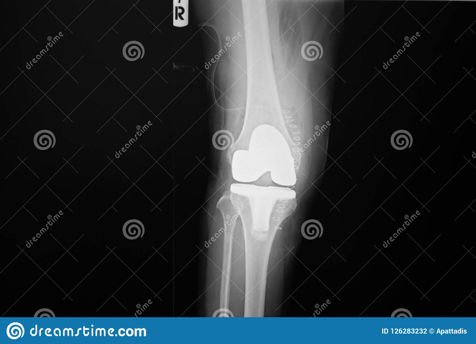 X Ray Image Of Lanteroposteriorright Knee Joint With Total Knee