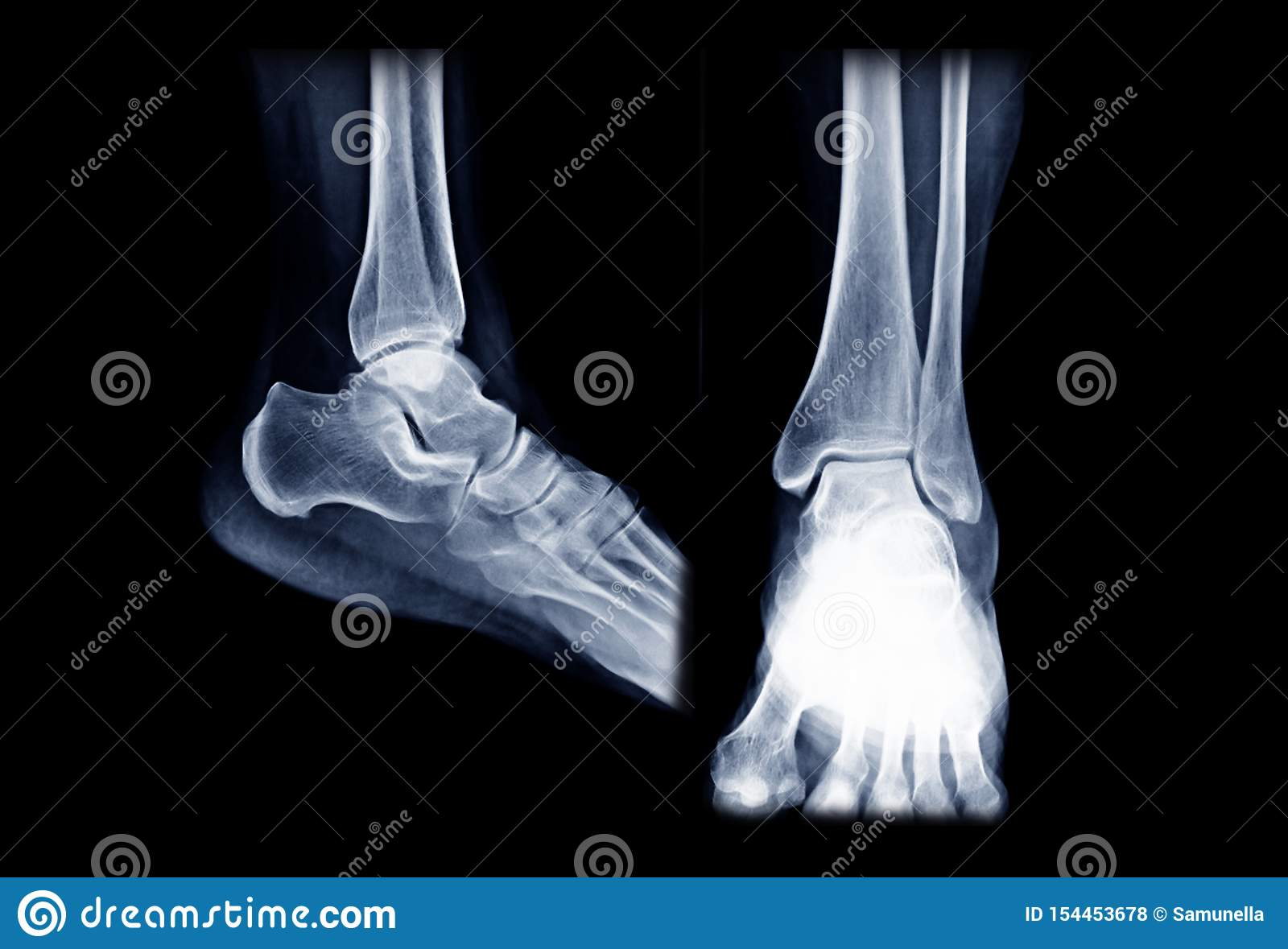37 X Ray Foot Ap View Photos Free Royalty Free Stock Photos From Dreamstime