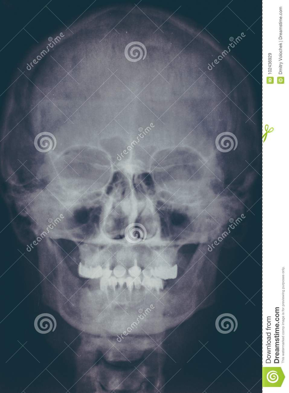X-ray Image Or Roentgen Of Human Skull, Close-up. Head Xray Scan Of ...