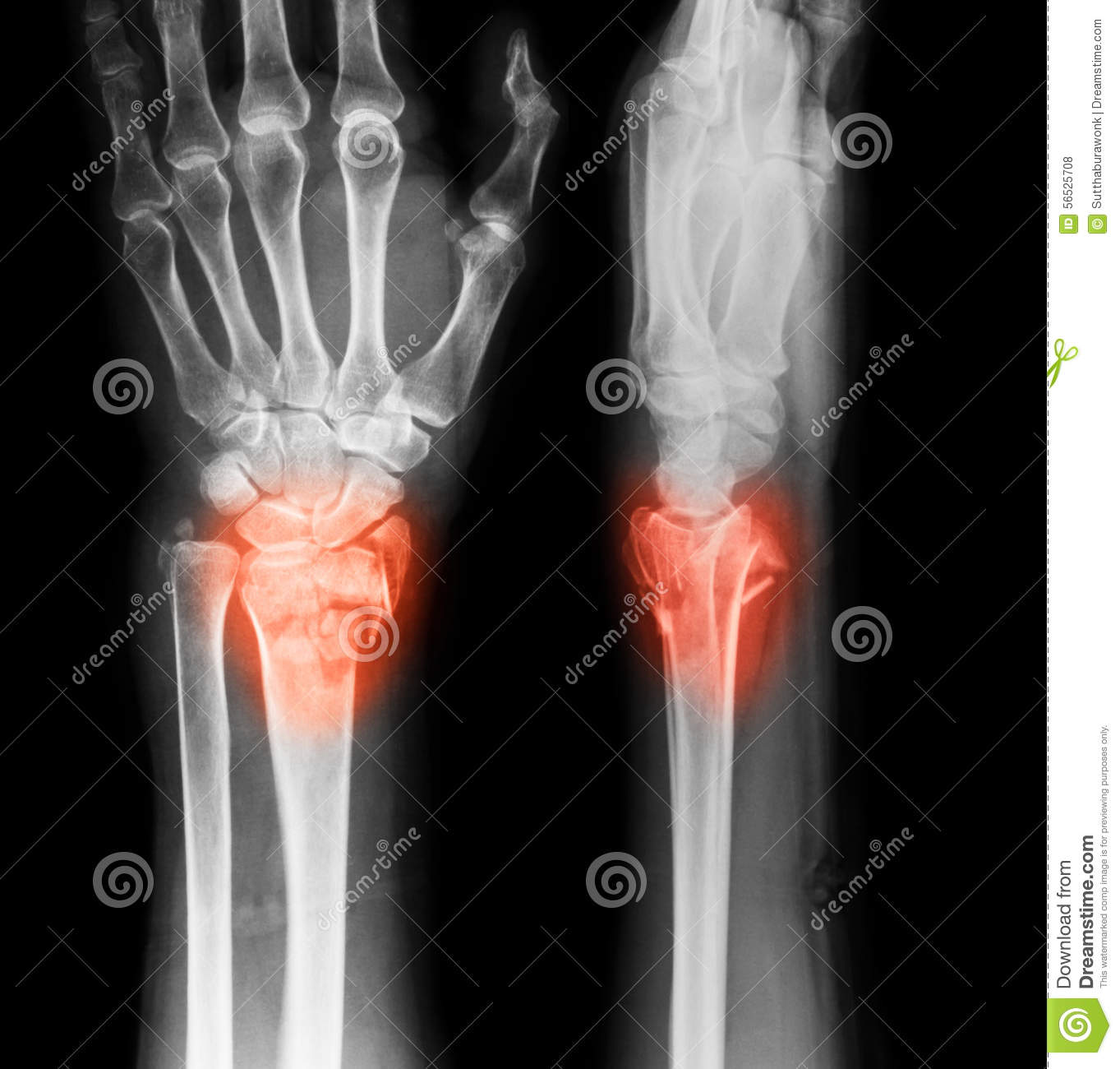 X-ray Image Of Wrist Joint, AP And Lateral View. Stock ...