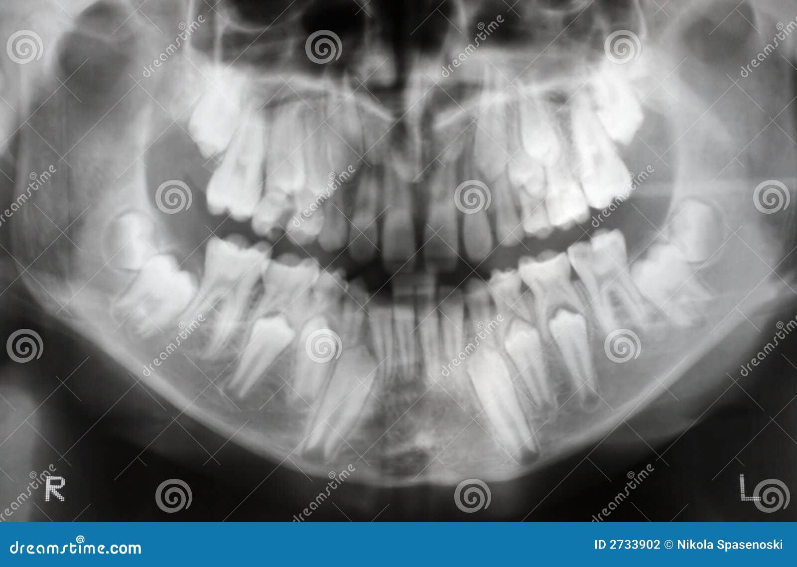 Рентген детей с молочными зубами