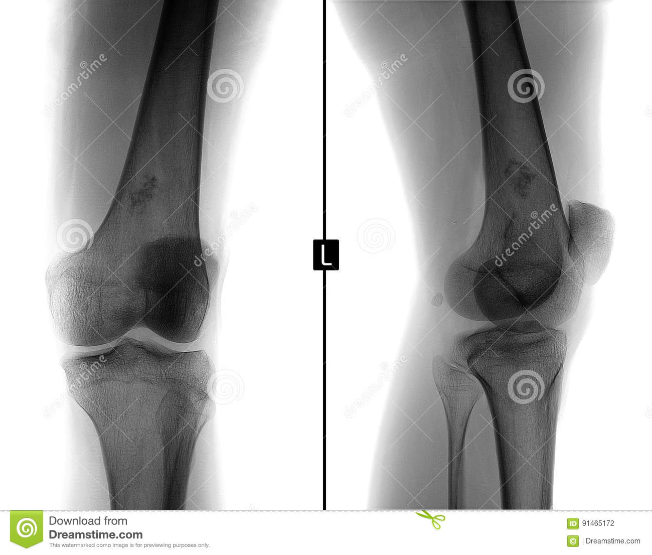 X-ray of the left knee joint. Ewing sarcoma, lymphoma, myeloma thigh bone. Negative.