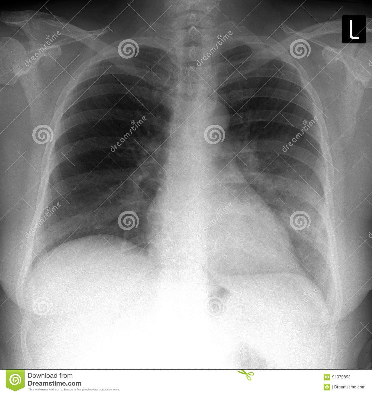 X-ray Lung. Showing A Large Infiltrate In The Left Lung