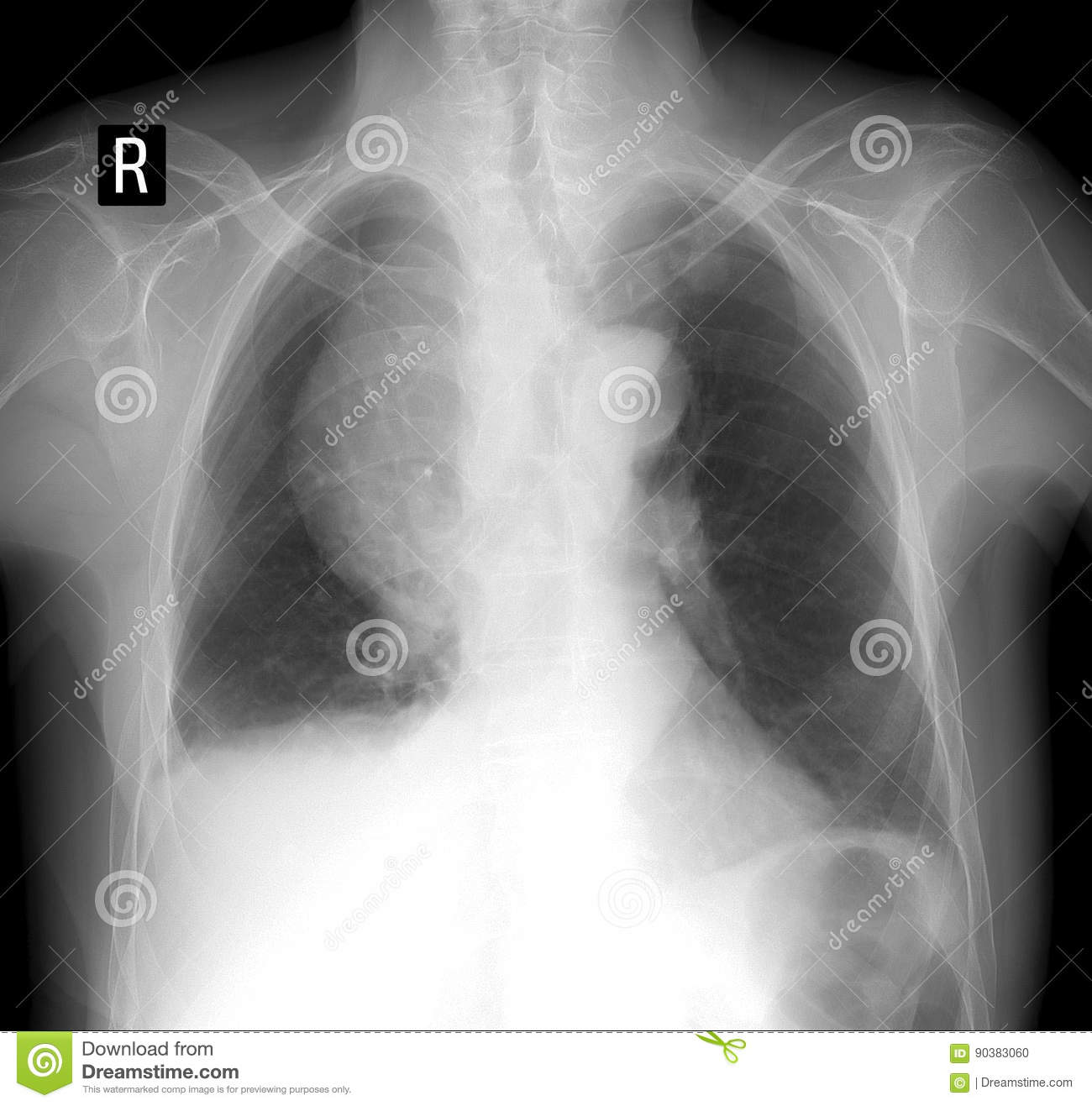 X-ray Lung. Volume Formation Of The Mediastinum. Negative. Stock ...
