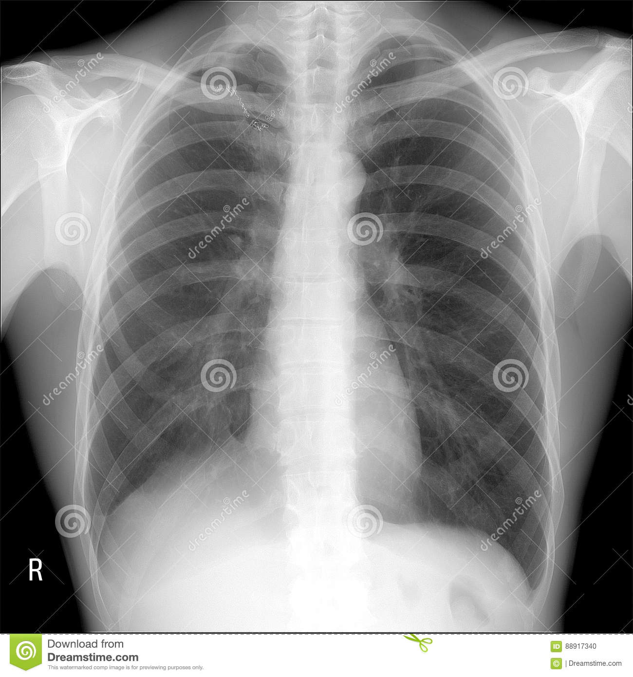 X-ray lungs: lobectomy right lung post tuberculosis