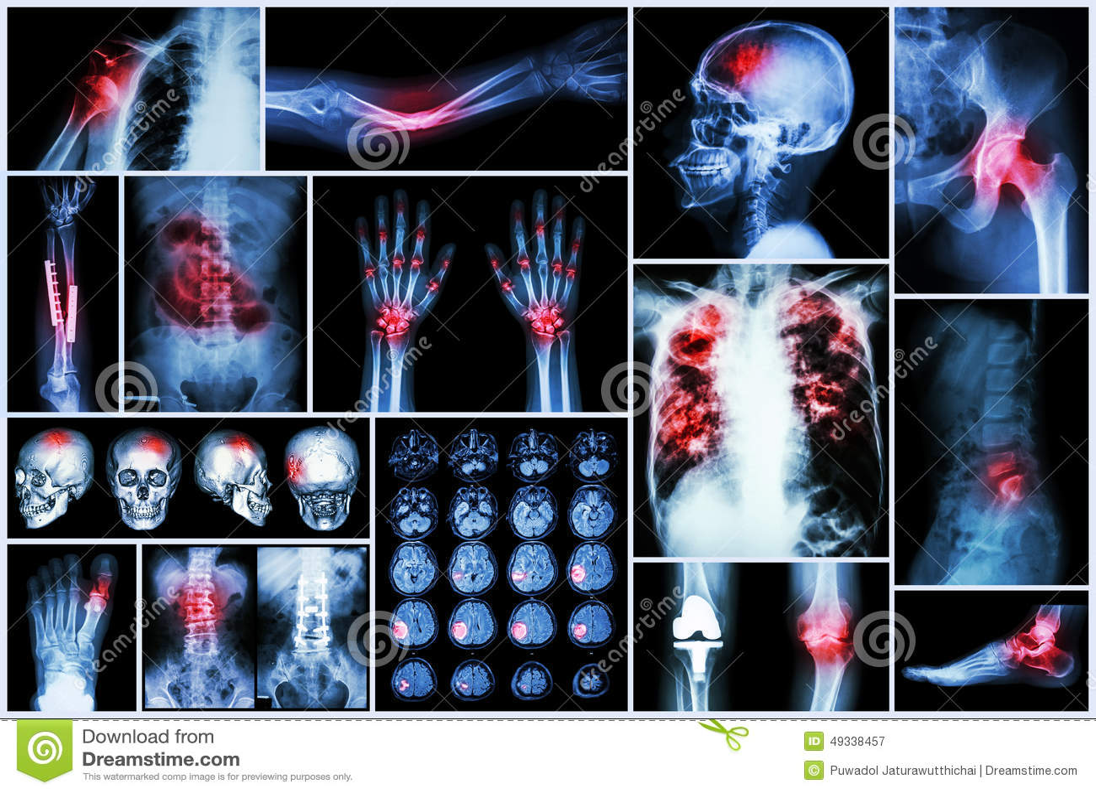 X-ray multiple disease (Stroke (cerebrovascular accident) : cva ,Pulmonary tuberculosis ,Bone fracture ,Shoulder dislocation