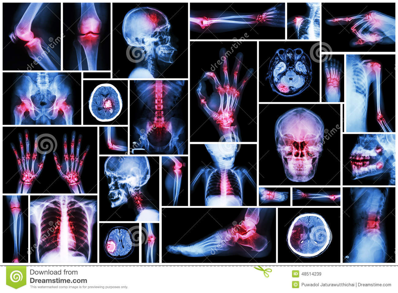 X Ray Multiple Part Human Multiple Disease Stroke Arthritis Gout Rheumatoid Brain Tumor Osteoarthritis Etc