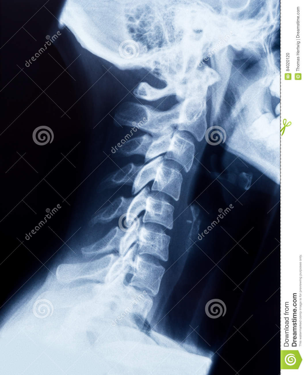 X-ray Of The Neck And Skull - Side View Stock Photo ... X Ray Skull 4 Views
