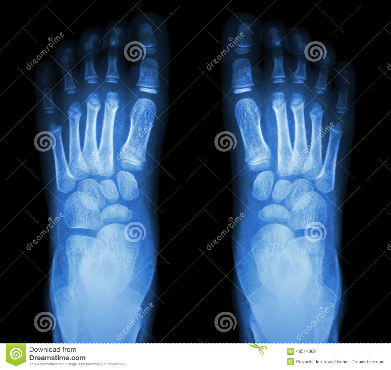 X Ray Normal Childs Foots Stock Photo Image Of Human 48514002