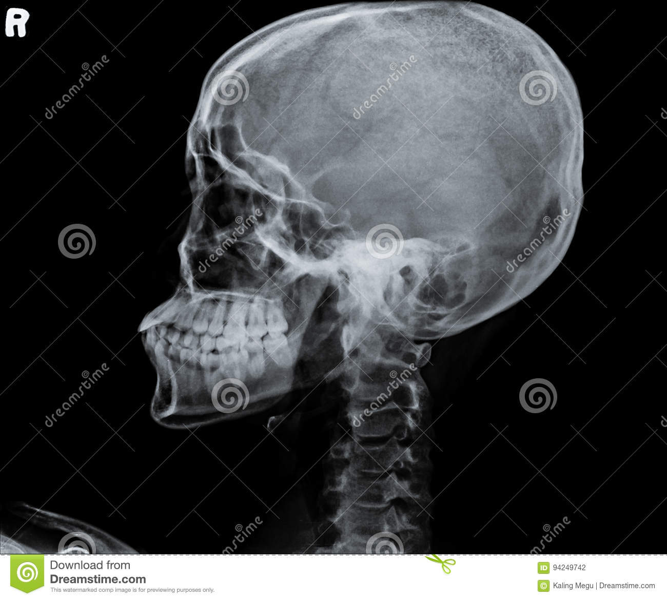 X Ray Of Side View Of Human Child Skull. Stock Photo - Image of ...