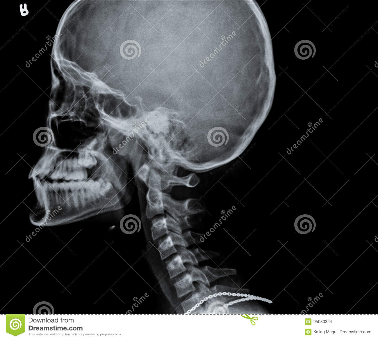 X Ray Of Side View Of Human Child Skull Stock Photo Image Of
