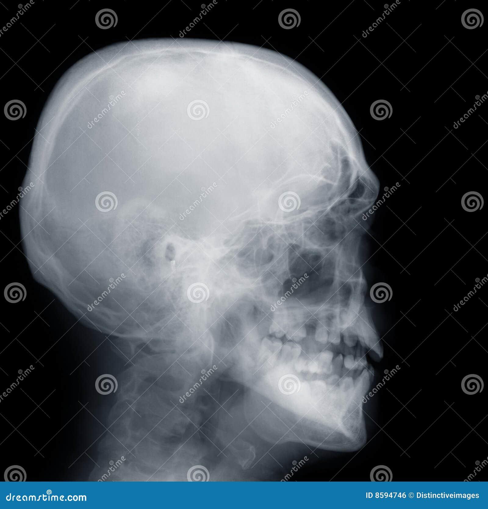 X-ray Skull stock photo. Image of human, anatomy, physical - 8594746