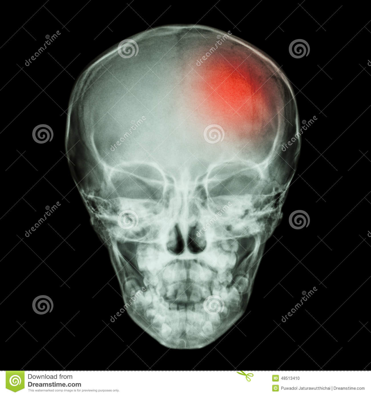 X- ray Skull of child and Stroke (cerebrovascular accident)