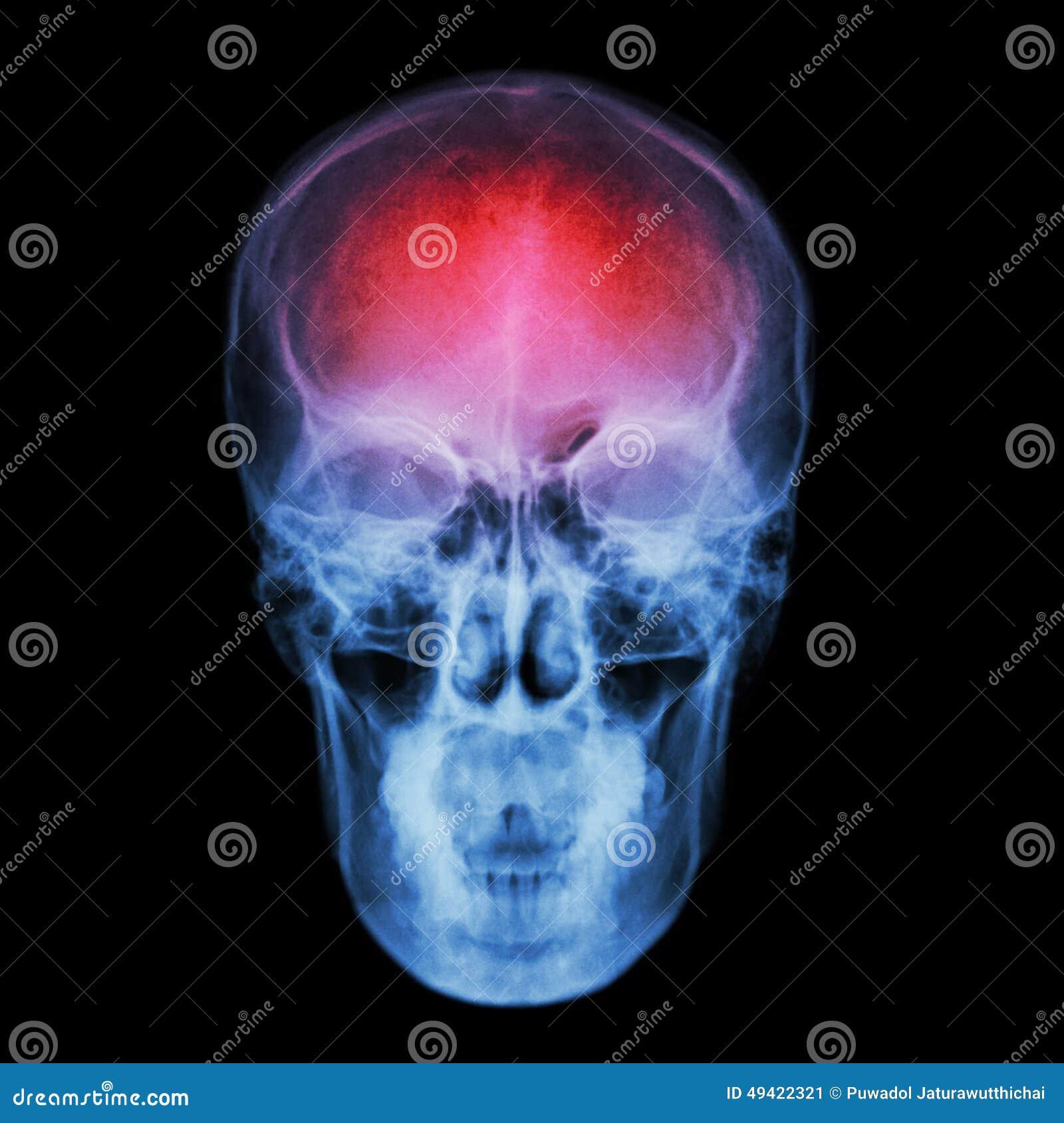 x ray skull and stroke cerebrovascular accident cva stock