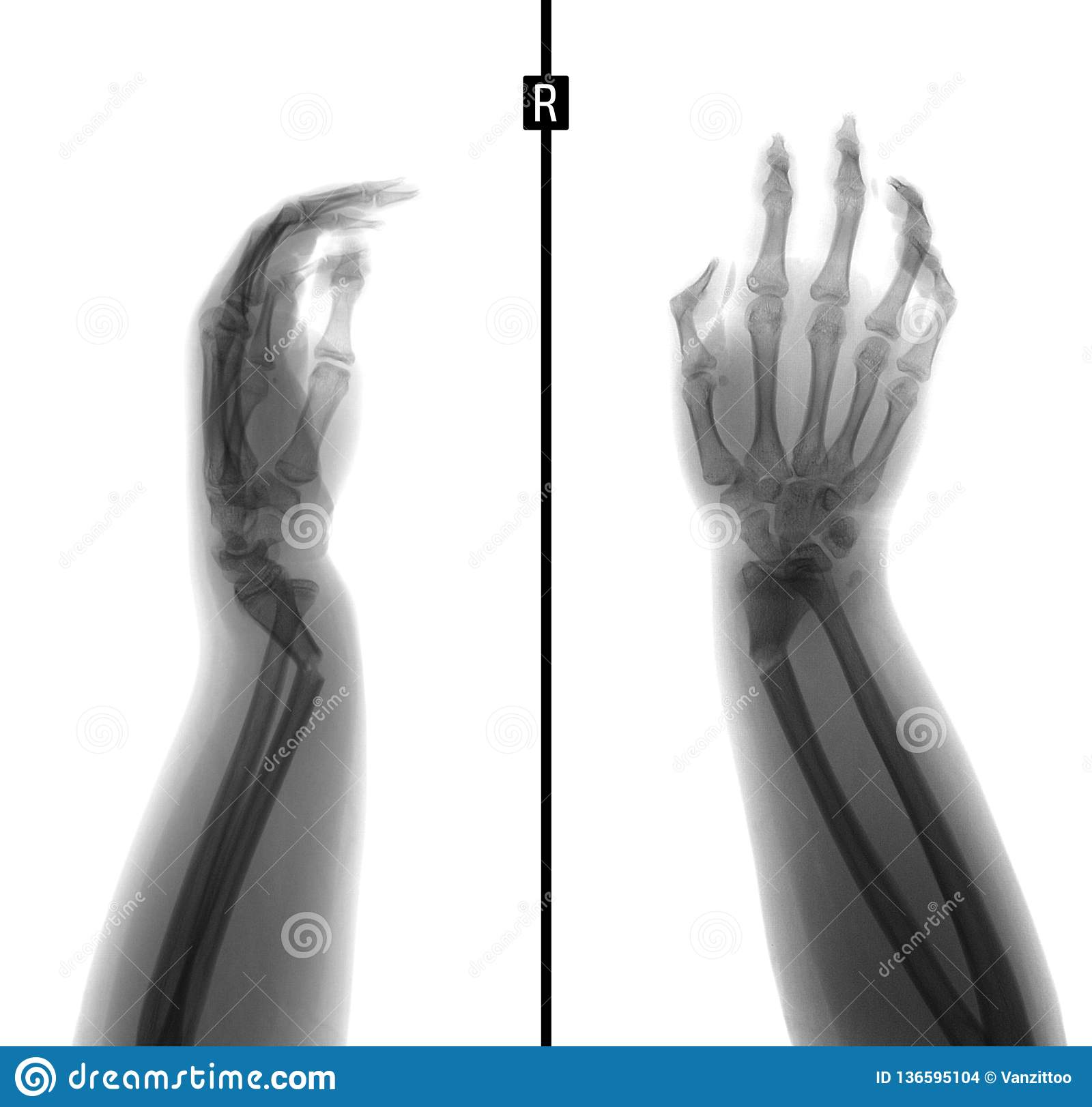 X Ray Of The Wrist Greenstick Fracture Of The Radius Negative