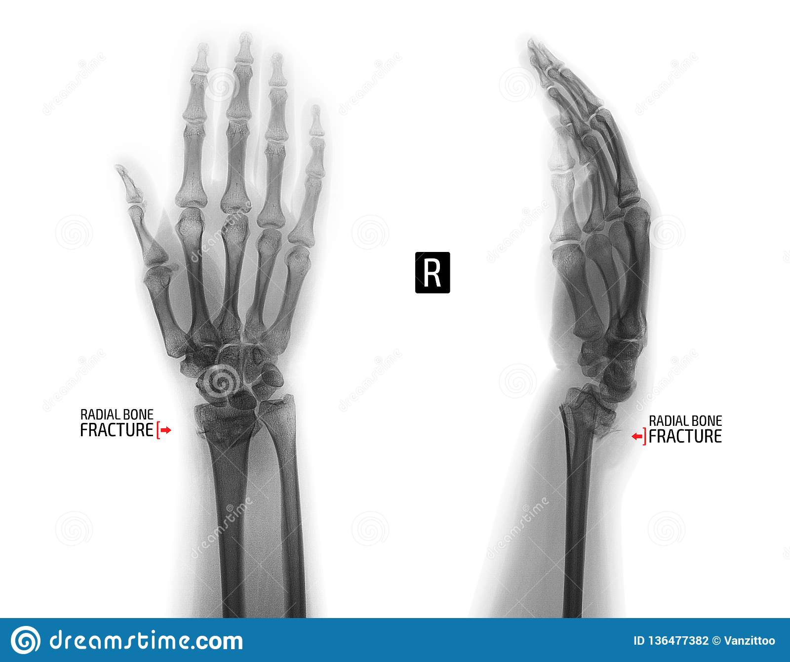 X-ray Of The Wrist Joint  Fracture Of The Radius  Negative