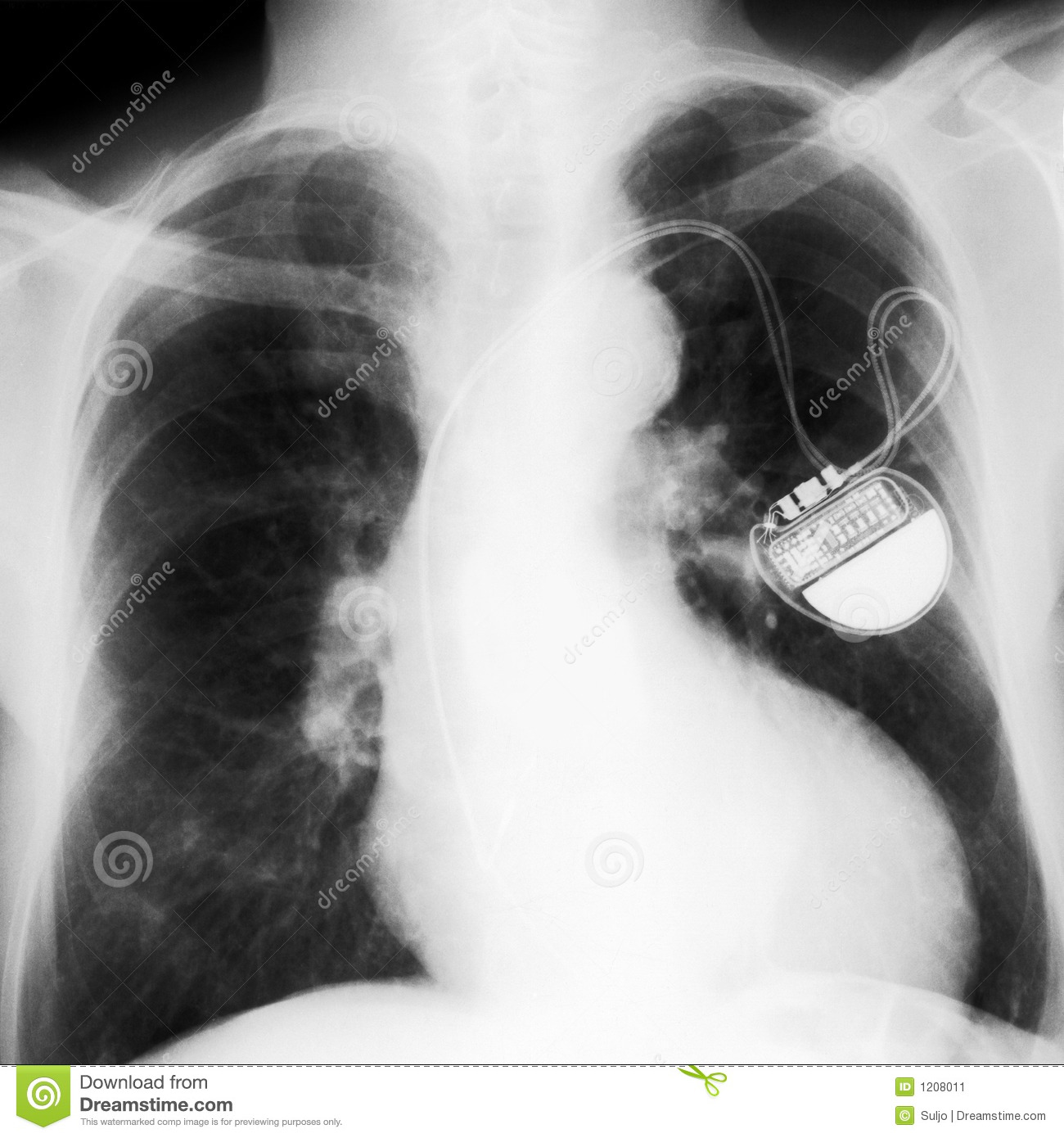 X-rayed chest