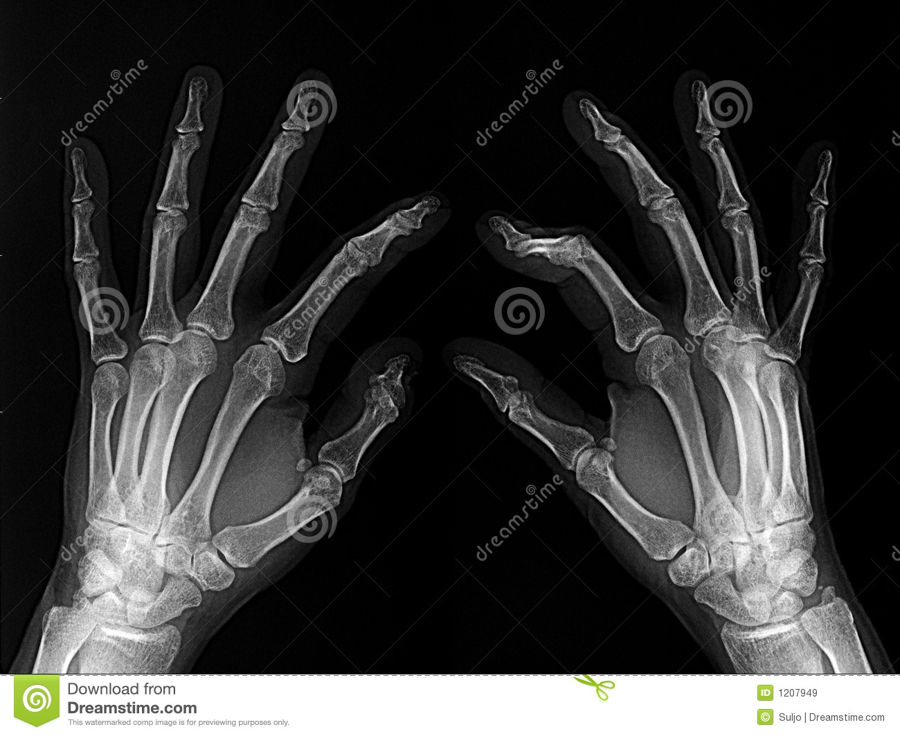 X-rayed hands