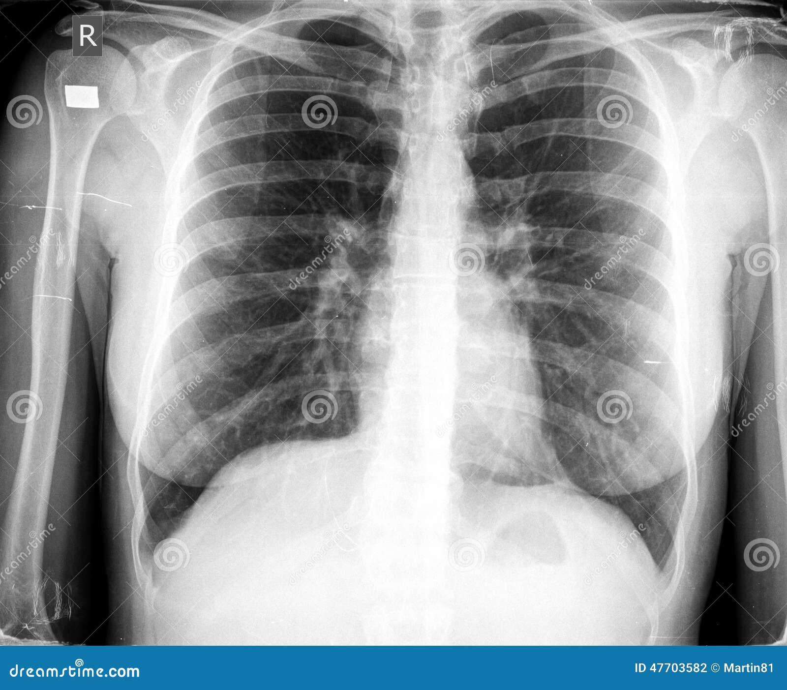 Xray chest