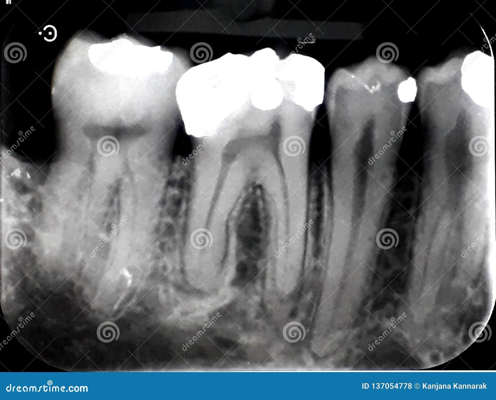 Xray Dental Film Amalgam Filling Stock Photo - Image of ...