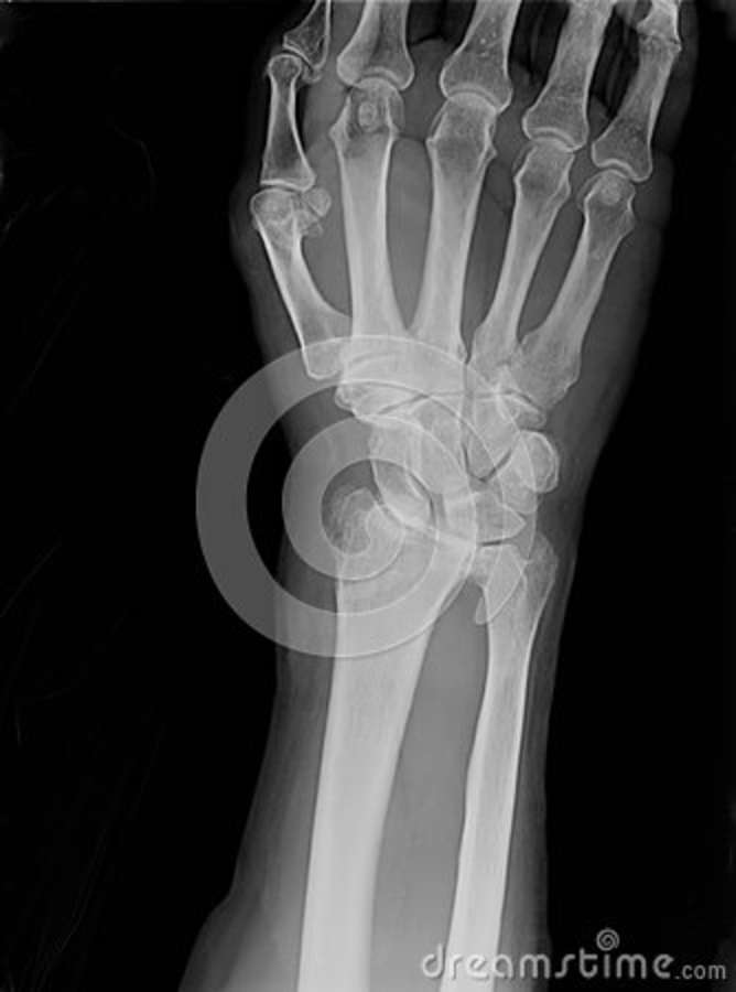 Xray of epiphysial radial fracture reduced with permanent synthetic means
