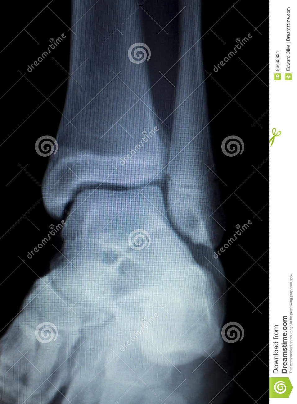 Xray foot heel ankle scan stock photo. Image of foot - 86465834