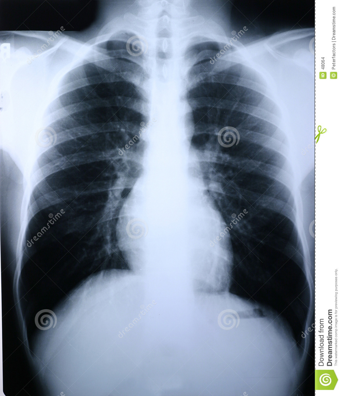 Xray/lung