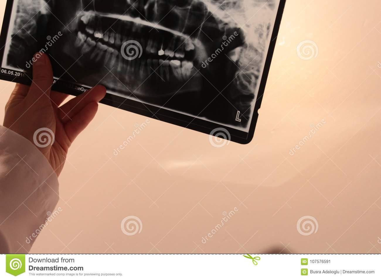 Xray Teeth Dentist Anatomy Scan Stock Image - Image of pain, scan ...